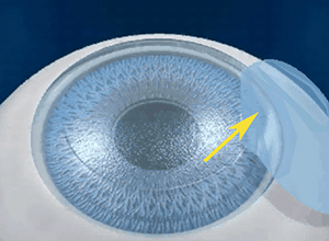 Iroc Zuric LASIK operation
