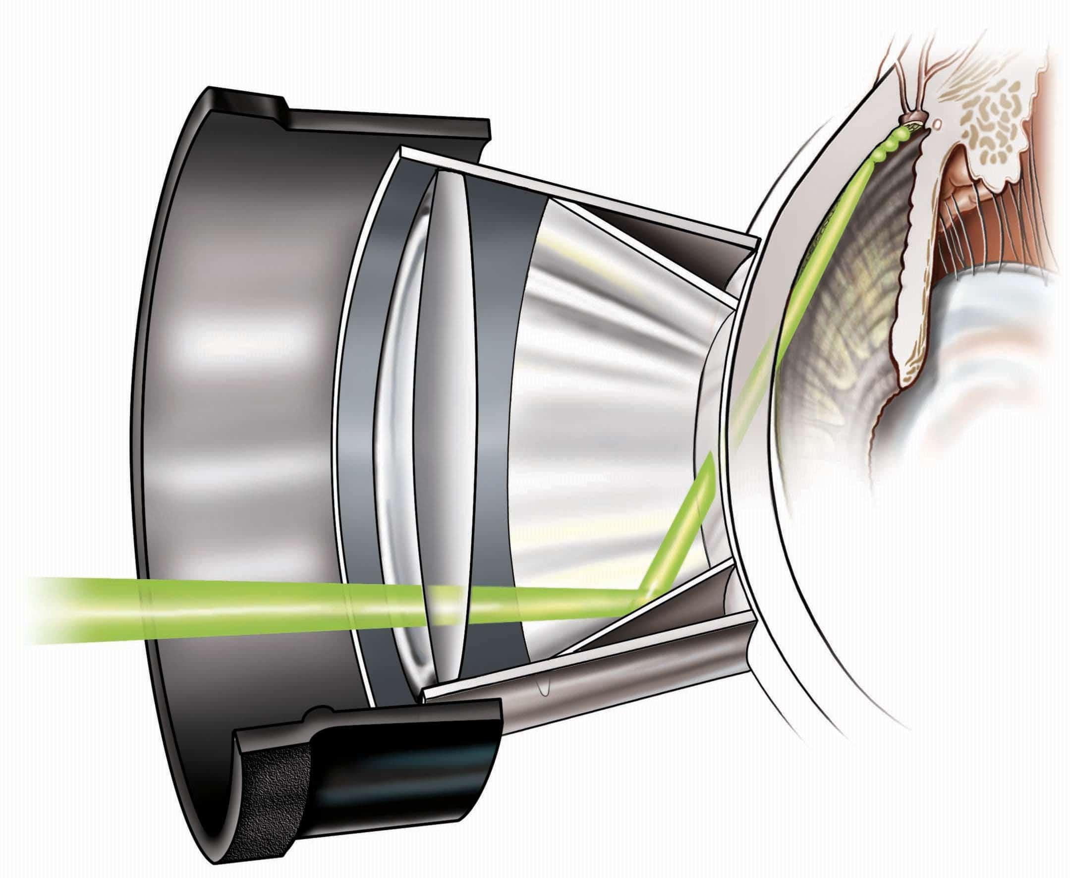 SLT Treatment illustration in IROC Zurich