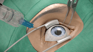 Iroc Zurich Macular therapy operation illustration